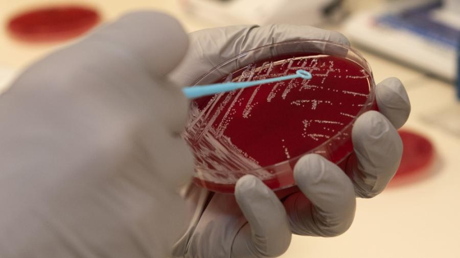 Photo of Strep culture by U.S. Air Force Photo by Heide Couch)